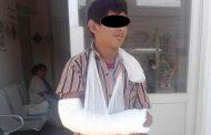 José de 14 años dice que lo atropellaron, pero perdió el control de su mototaxi y volcó