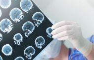 Científicos descubren una nueva droga que ayuda a revertir la pérdida de memoria