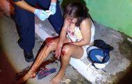 Por conducir ebria, derrapa su moto y se lesiona, en Tizimín